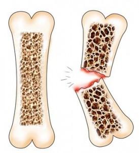 Os normal si os cu osteoporoza